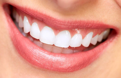 Teeth whitening in Vaughan